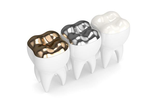 odontoiatria metal free