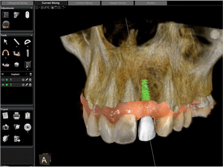 implantologia allumiere tolfa